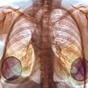 Breast Implants, X-ray Art Print