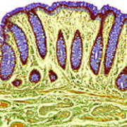 Colon Lining, Light Micrograph Art Print by Steve Gschmeissner