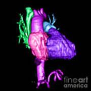 Color Enhanced 3d Cta Of Heart Art Print