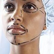 Facelift Surgery Markings Print by Adam Gault