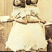 2 Headed Girl Millie-chrissie Art Print by Photo Researchers