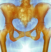 Healthy Hip Bones, X-ray Art Print