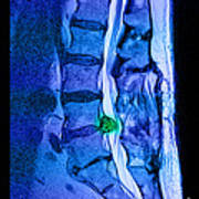 Herniated Disc Art Print by Medical Body Scans