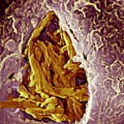 Macrophage Engulfing Tuberculosis Vaccine Art Print by