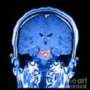 Mri Brainstem Cavernous Malformations Art Print