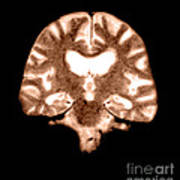 Mri Of Brain With Alzheimers Disease Art Print