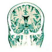 Normal Coronal Mri Of The Brain Art Print