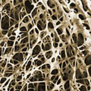 Sem Of Human Shin Bone Art Print by Science Source