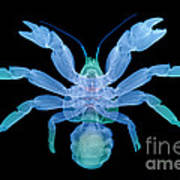 X-ray Of Coconut Crab Art Print
