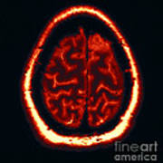 Mri Of Normal Brain Art Print