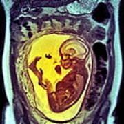 9 Month Foetus, Mri Scan Art Print
