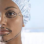 Facelift Surgery Markings Art Print
