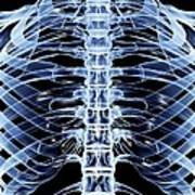 Ribcage, Computer Artwork Art Print