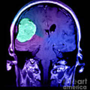 Right Sided Meningioma Art Print