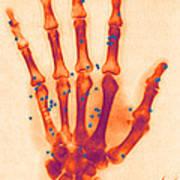 X-ray Of Gunshot In The Hand Art Print