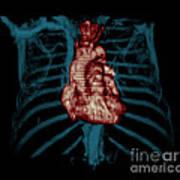 3d Ct Reconstruction Of Heart Art Print