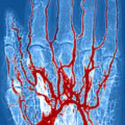 Hand Arteriogram Art Print