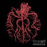 Intracranial Ct Angiogram Art Print