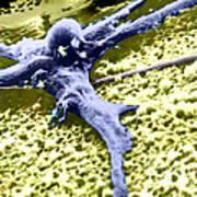 Malignant Cancer Cell Art Print