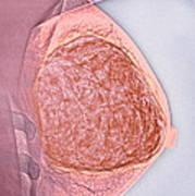 Breast Tumour, X-ray Art Print