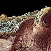 Pyoderma Skin Disease, Sem Art Print by Steve Gschmeissner