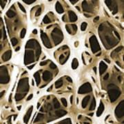 Sem Of Human Shin Bone Art Print