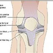 Knee Replacement, Artwork Art Print