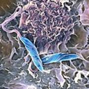Macrophage Attacking A Foreign Body, Sem Art Print