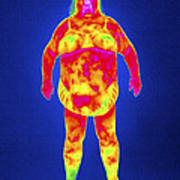 Obese Woman, Thermogram Art Print
