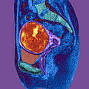 Uterine Fibroid, Mri Scan Art Print