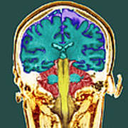 Healthy Brain, Mri Scan Art Print