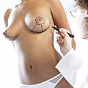 Cosmetic Breast Surgery Art Print