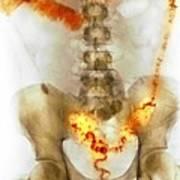 Ulcerative Colitis, X-ray Art Print