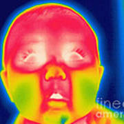 A Thermogram Of A 5 Month Old Baby Art Print