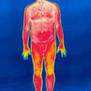 A Thermogram Of A Nude Man Art Print