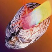 Abstract Image Of A Headache As A Bolt Of Light Art Print