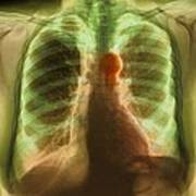 Aortic Aneurysm, X-ray Art Print