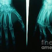 Arthritic & Normal Hand Art Print