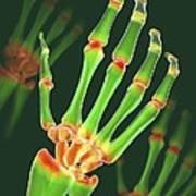 Arthritic Hand, X-ray Artwork Art Print