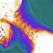 Artificial Cervical Disc, X-ray Art Print