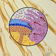 Artwork Of The Mechanism Of Rheumatoid Arthritis Art Print by John Bavosi