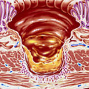 Artwork Showing Close-up Of Gastric Ulcer Art Print