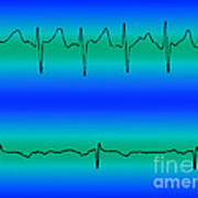 Atrial Fibrillation & Normal Heart Beat Art Print