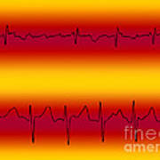 Atrial Flutter & Atrial Fibrillation Art Print
