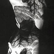 Body Projection Woman - Duplex Art Print