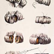 Bowel Surgery Art Print