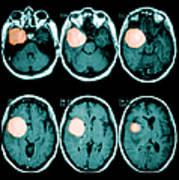 Brain Tumor Art Print