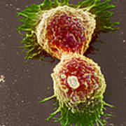 Breast Cancer Cells Art Print