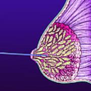 Breast Cancer Endoscope Art Print by Volker Steger