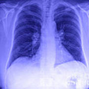Chest X-ray Art Print